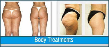 cellulite reduction san jose, ca